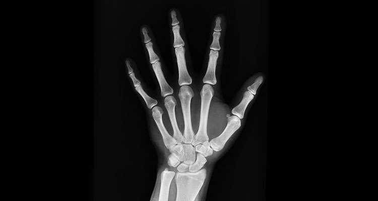 ostéoporose, densité osseuse